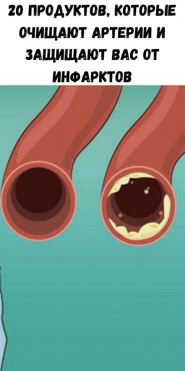 20-produktov-kotorye-ochischayut-arterii-i-zaschischayut-vas-ot-infarktov-2-3264303