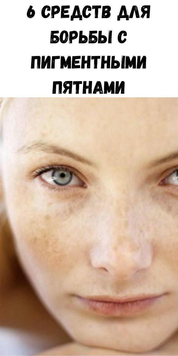6-sredstv-dlya-bor-by-s-pigmentnymi-pyatnami-2-6630771