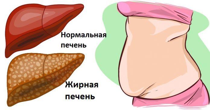 6-yavnyh-priznakov-togo-chto-vasha-pechen-polna-toksinov-i-vrednyh-elementov-1-5029967