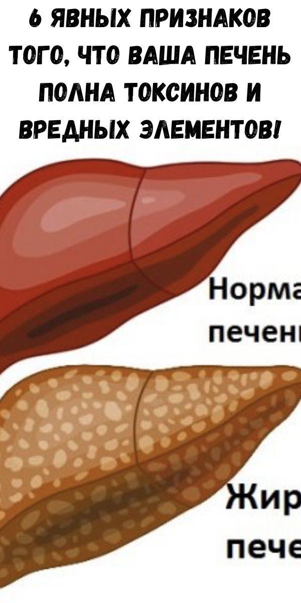 6-yavnyh-priznakov-togo-chto-vasha-pechen-polna-toksinov-i-vrednyh-elementov-2-1547238