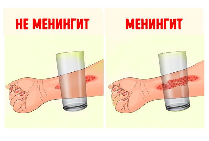 8-priznakov-meningita-kotorye-dolzhen-znat-kazhdyy-roditel-1-8654804