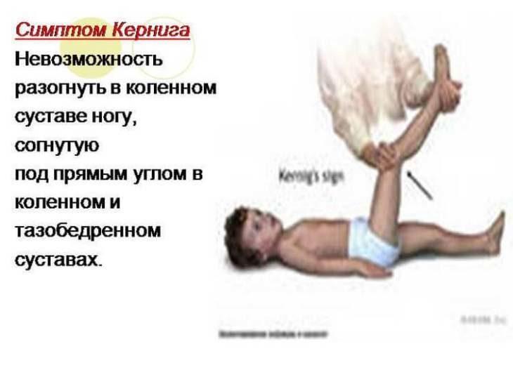 8-priznakov-meningita-kotorye-dolzhen-znat-kazhdyy-roditel-3-4014490