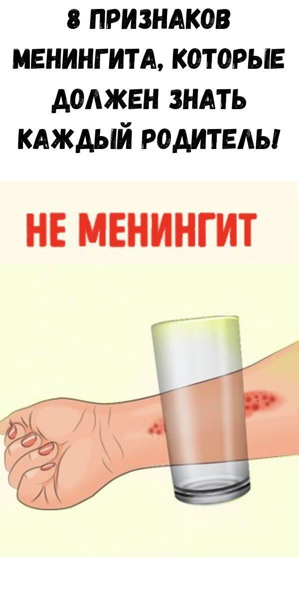 8-priznakov-meningita-kotorye-dolzhen-znat-kazhdyy-roditel-4-9870885