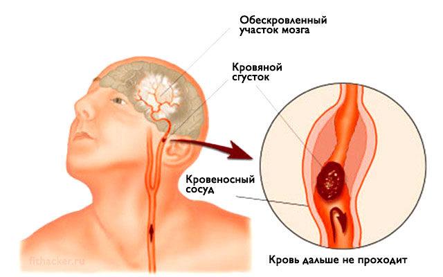 insul-t-zapomnite-vsego-3-pervyh-shaga-chtoby-spasti-sebe-i-blizkim-zhizn-1-7534150