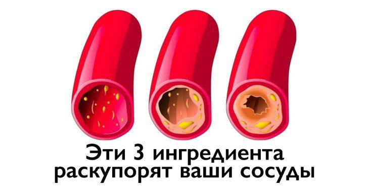kak-ochistit-vashi-sosudy-s-pomosch-yu-vsego-3-h-ingredientov-1-5723262