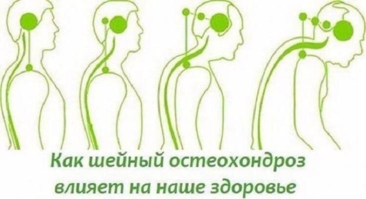 kak-uberech-sya-ot-osteohondroza-i-kak-ta-bolezn-vliyaet-na-nashe-sostoyanie-1-7411566