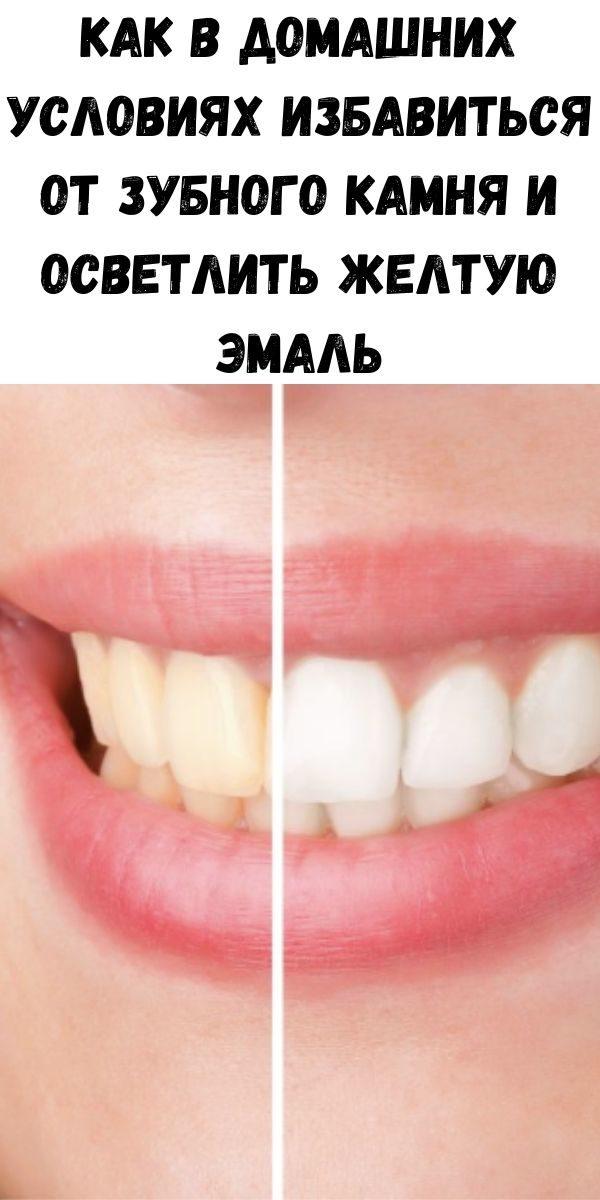 kak-v-domashnih-usloviyah-izbavit-sya-ot-zubnogo-kamnya-i-osvetlit-zheltuyu-emal-2-4495319