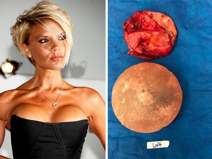 kovarnyy-process-kotoryy-zapuskayut-v-tele-grudnye-implanty-1-1830459