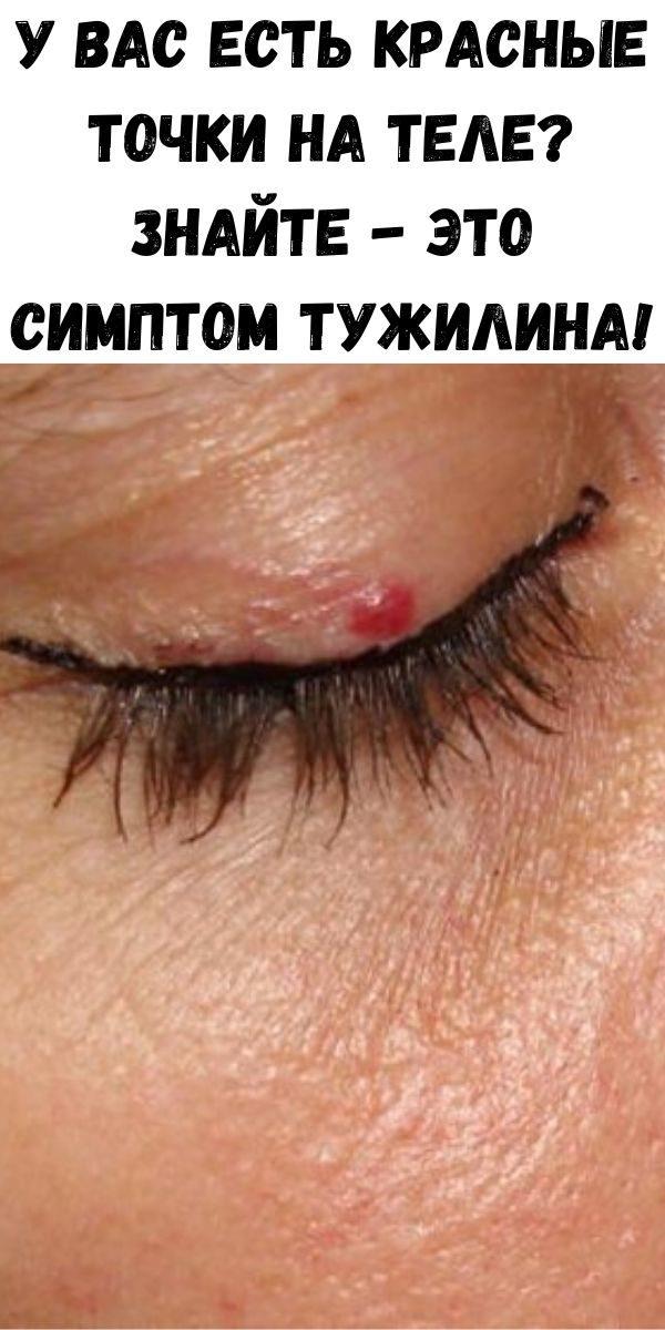 u-vas-est-krasnye-tochki-na-tele-znayte-eto-simptom-tuzhilina-3-1896605