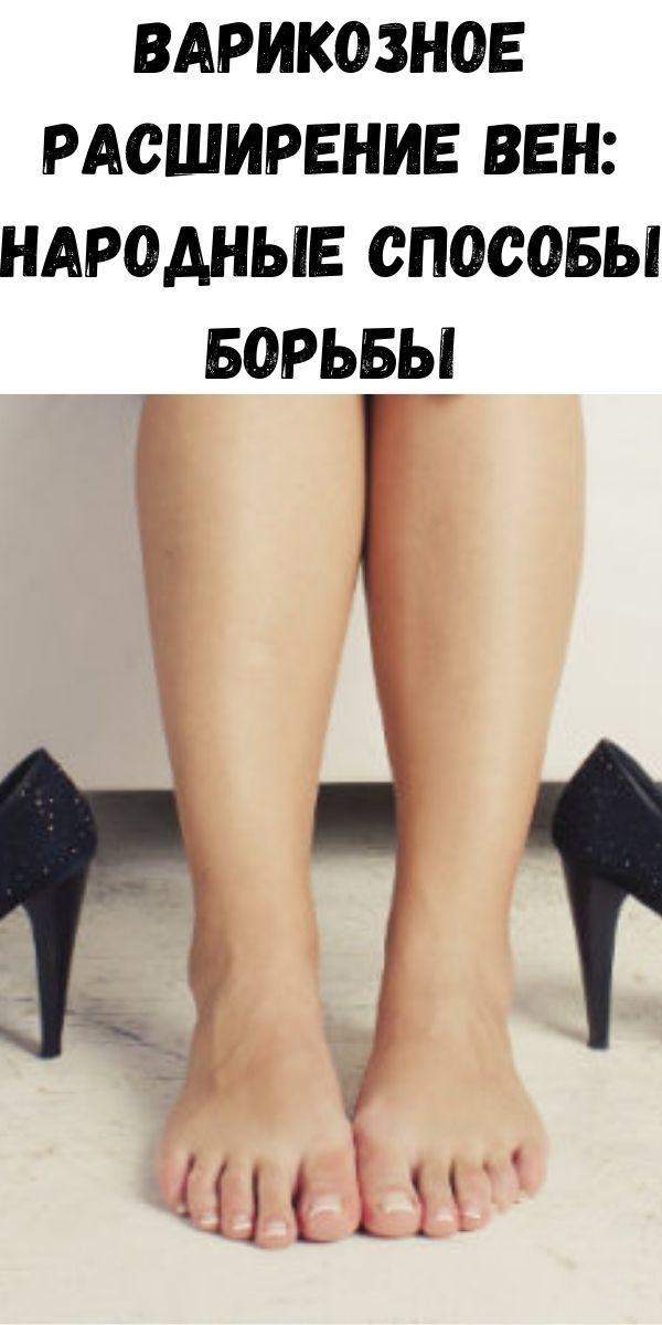 varikoznoe-rasshirenie-ven-narodnye-sposoby-bor-by-2-9841991